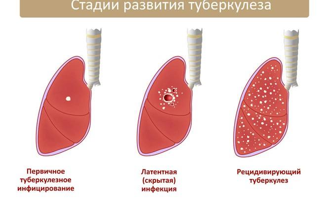 препараты от инфекционной диареи у взрослых