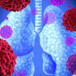 Инфекционное воспаление легких