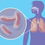 Туберкулез - причина появления плеврита