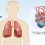 Схема накопления лишней жидкости в легких