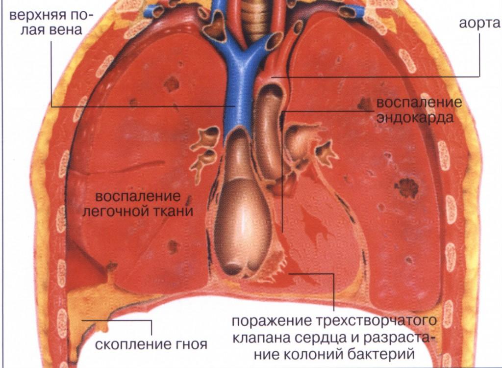 Лечение воспаления легки в домашних условиях