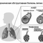 Эмфизема легких - следствие бронхита
