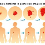 Фото стадий рака легких