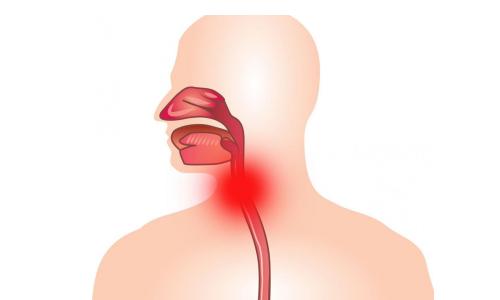 Заболевание ларингитом