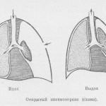 Пневмоторакс - следствие бронхиальной астмы