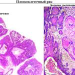 Фото под микроскопом плоскоклеточного рака легких