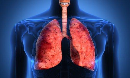 Опасность мелкоклеточного рака легких