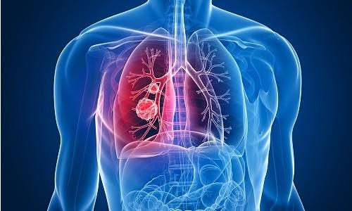Продолжительность жизни при раке легких