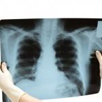 Диагностика рака легких на рентгене
