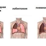 Виды операций при раке легкого