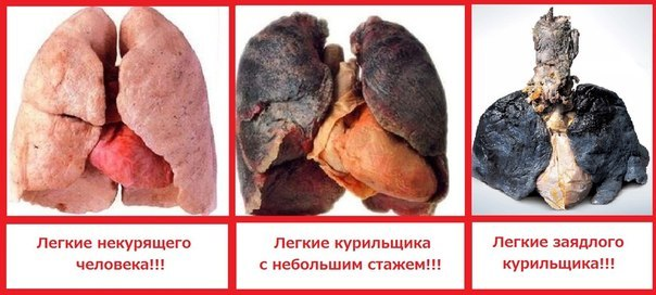 легкие при курении
