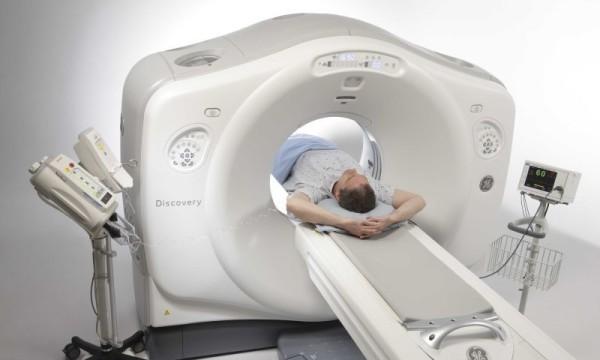 Проведение томографии грудной клетки при саркоидозе
