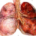 Возникновение отека легких при гриппе