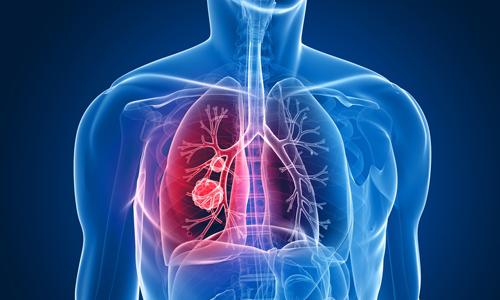 Проблема опухоли легких
