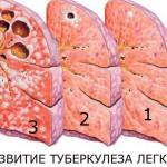 Схема стадий туберкулеза