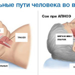 Дыхательные пути человека во время сна