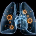 Бронхопневмония из-за поражения легких и бронхов бактериями