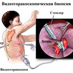 Видеоторакоскопическая биопсия легкого
