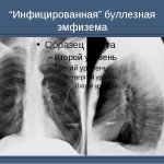 Буллезная эмфизема на рентгене