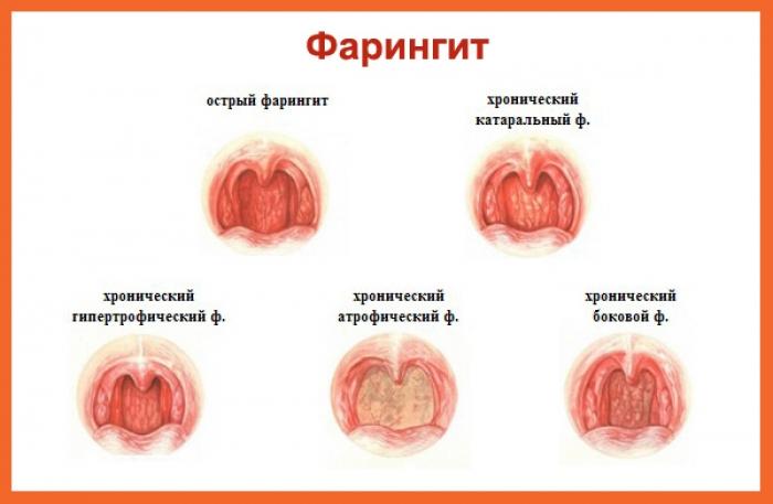 Ларингит симптомы и лечение в домашних условиях у детей