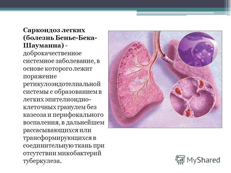 Саркоидоз как долго лечить 59