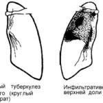 Формы инфильтративного туберкулеза