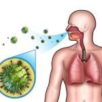 Попадание пыли и бактерий в бронхи