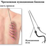 Чрескожная пункционная биопсия легкого