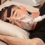 Назначение СИПАП-терапии для лечения апноэ