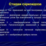Стадии саркоидоза