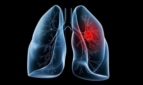 Определение туберкулеза и рака легких