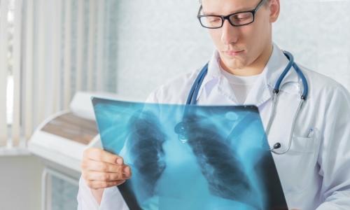 Проблема туберкулеза у взрослого населения