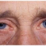 Уменьшение размера зрачка при хорнер-синдроме