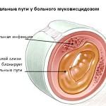 Дыхательные пути у больного муковисцидозом