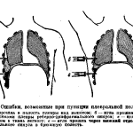 Ошибки при пункции плевральной полости