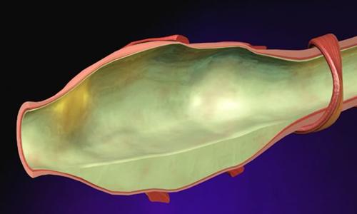 Проблема бронхоэктазов в легких