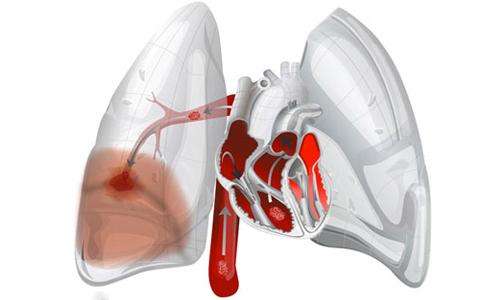 Схема тромбоэмболии легочной артерии