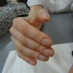 Симптом пальцев Гиппократа