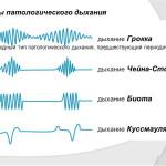 Типы патологического дыхания