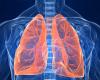 Реабилитация после пневмонии: можно ли ехать на море