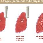 Туберкулез - осложнение воспаления легких