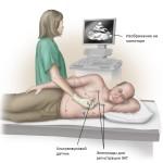 УЗИ легких для диагностики плеврита