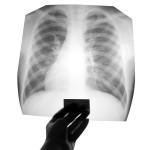 Ренген легких после лечения туберкулеза