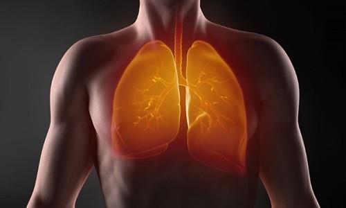 Проблема пневмонии у человека