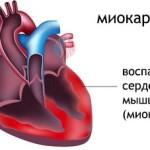 Миокардит как осложнение после пневмонии