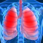 Воспалительный процесс в легких