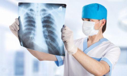 Диагностика аллергической пневмонии на рентгене