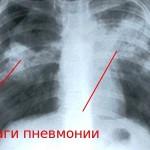 Очаги пневмонии на снимке