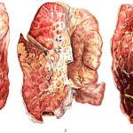 Вид тяжелой пневмонии