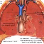 Схема воспаления легких